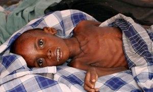 Somalia-foamete